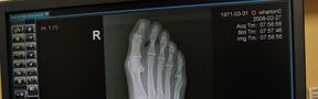 Foot Pain and Deformities